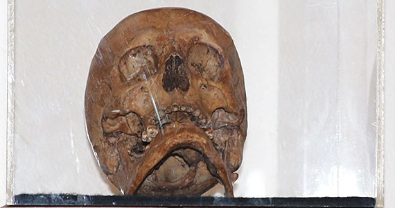 The skull of Fr. Manuel Solorzano,,a Jesuit priest who was killed on Guam 330 years ago.